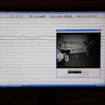 El Hospital General 'La Mancha Centro' mejora el diagnóstico de los pacientes epilépticos
