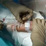 El Hospital General 'La Mancha Centro' implanta el Proyecto 'Bacteriemia Zero'