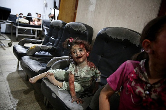 A young wounded Syrian girl waits for treatment at the Unified Medical Office for Douma, a make-shift medical centre in the rebel-held town of Douma, northeast of the capital Damascus, following reported heavy shelling and air strikes by government forces on the town killing nearly a dozen and injuring many children on June 16, 2015, according the Syrian Observatory of Human Rights. AFP PHOTO / ABD DOUMANYABD DOUMANY/AFP/Getty Images
