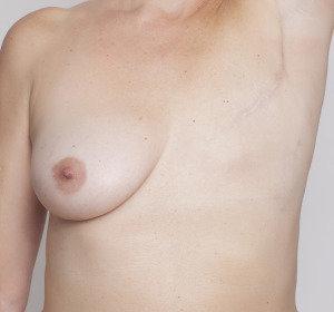 mastectomizada