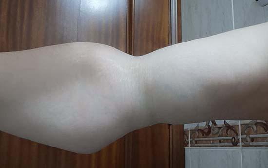 brazo3