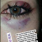 Ciudad Real: Una chica es trasladada al Hospital tras una agresión sexista en las inmediaciones del recinto ferial